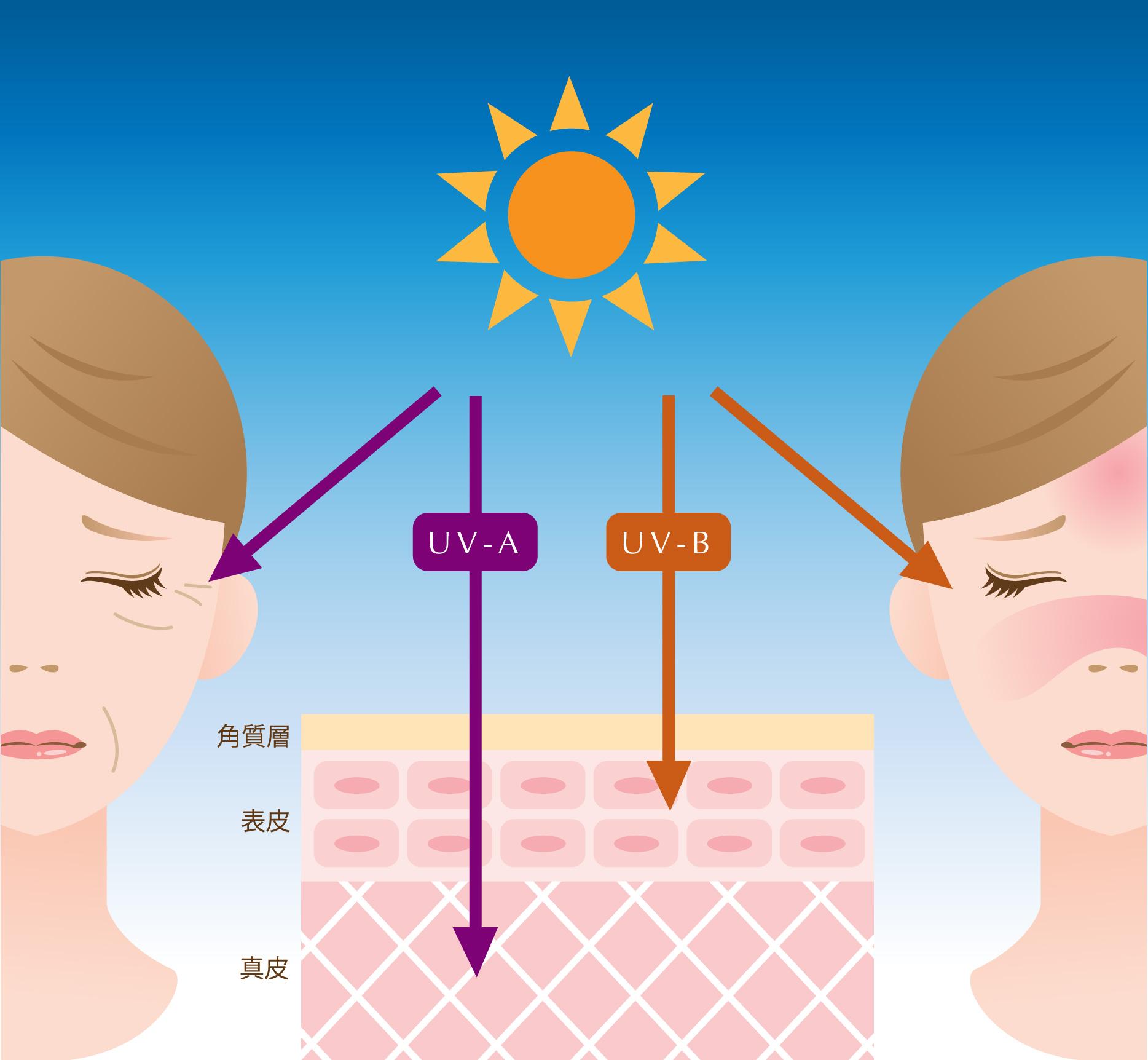 紫外線ダメージの説明画像